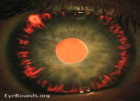 Testimonianza Ischemia del nervo ottico