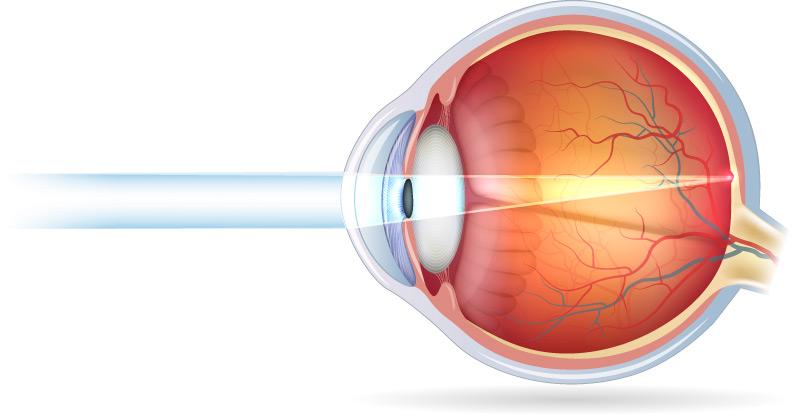 Visione normale dopo intervento di chirurgia refrattiva