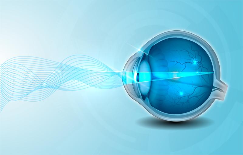 chirurgia-refrattiva-occhio