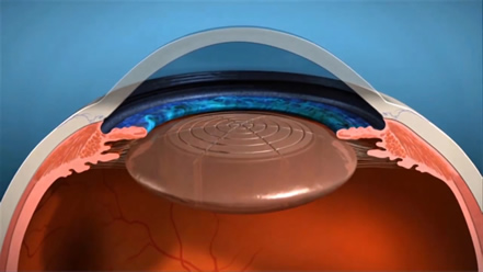 I principali problemi della vista diagnosi e terapie