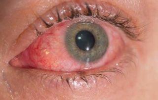 Le congiuntiviti infiammazione dalle diverse cause diagnosi e terapia