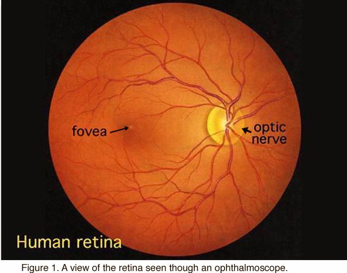 Il glaucoma patologia grave del nervo ottico