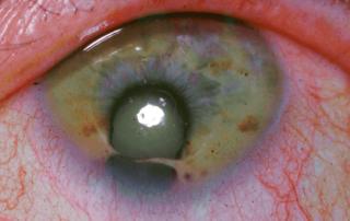 Il glaucoma segni distintivi e terapie