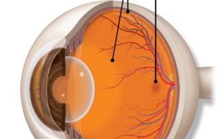 Ipovisione riduzione della visione
