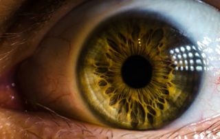 La Cataratta porzione del nostro occhio che perde trasparenza