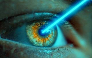 Chirurgia laser refrattiva per correggere i difetti di vista