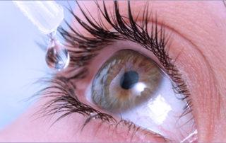 Occhio secco patologia diffusa e stratificata su tutte le età