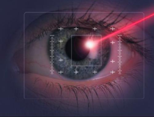 La chirurgia laser per la correzione dei difetti visivi