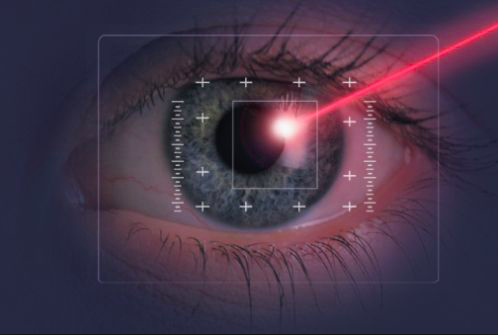 La chirurgia laser per la correzione dei vostri difetti visivi